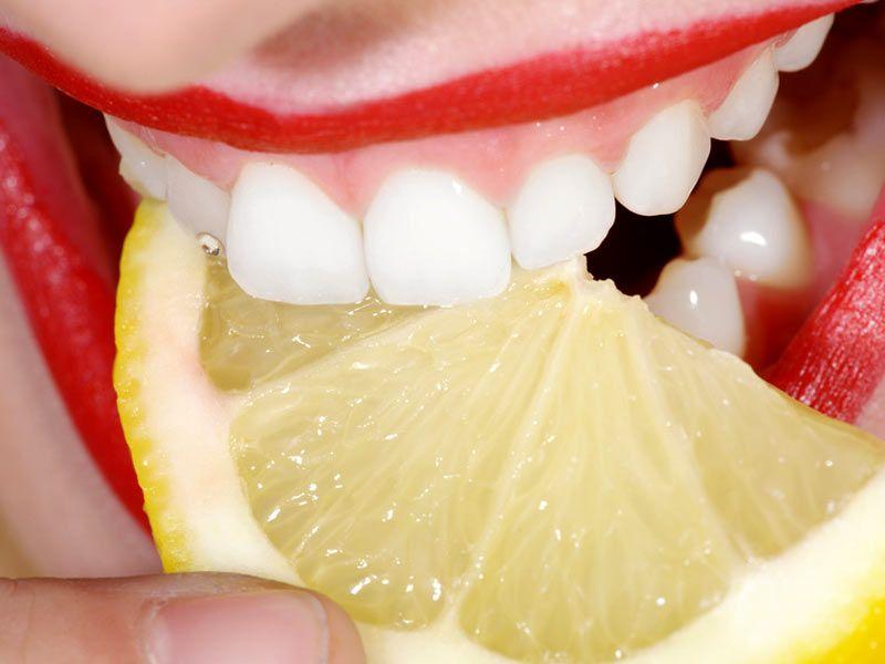 4-astuces-naturelles-pour-avoir-les-dents-blanches